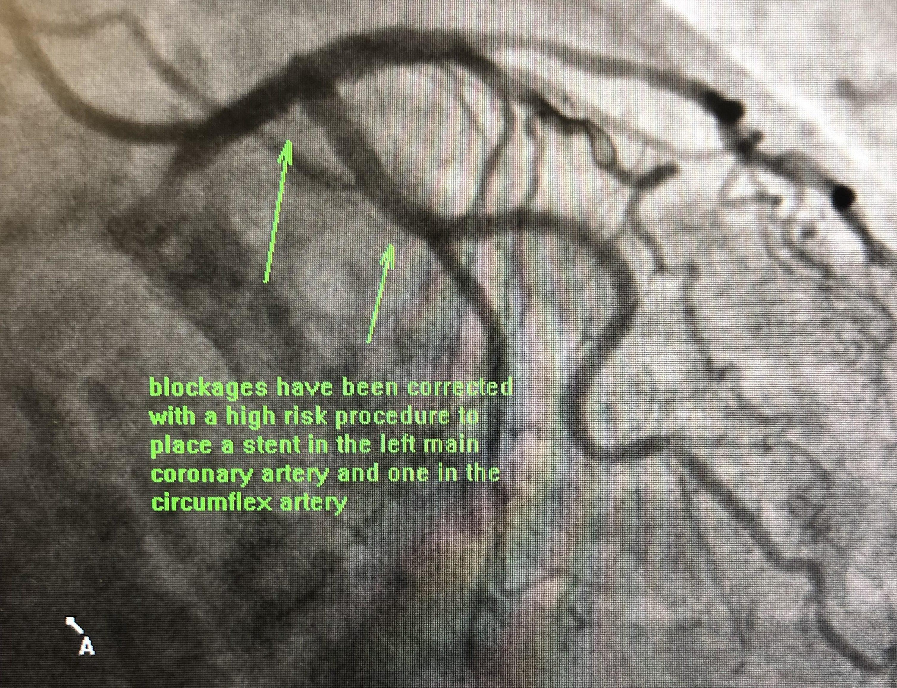 Cardiac Catheterization | Flemington NJ